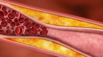 Obat Tradisional Kolesterol